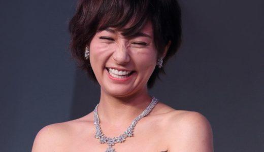 木村文乃の笑顔が不自然?猫ヒゲのような頬のシワは「えくぼ」だった!